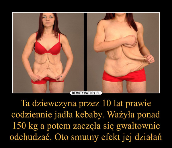 Ta dziewczyna przez 10 lat prawie codziennie jadła kebaby. Ważyła ponad 150 kg a potem zaczęła się gwałtownie odchudzać. Oto smutny efekt jej działań –