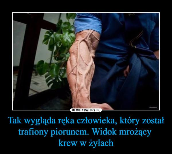 Tak wygląda ręka człowieka, który został trafiony piorunem. Widok mrożący krew w żyłach –