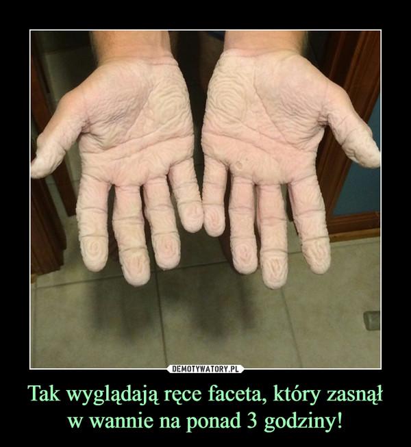 Tak wyglądają ręce faceta, który zasnął w wannie na ponad 3 godziny! –
