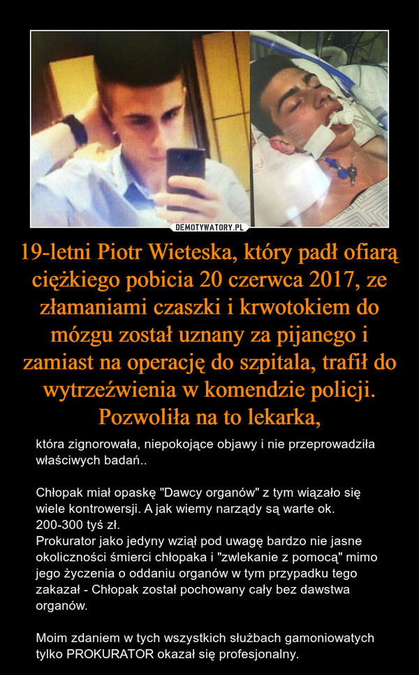 """19-letni Piotr Wieteska, który padł ofiarą ciężkiego pobicia 20 czerwca 2017, ze złamaniami czaszki i krwotokiem do mózgu został uznany za pijanego i zamiast na operację do szpitala, trafił do wytrzeźwienia w komendzie policji. Pozwoliła na to lekarka, – która zignorowała, niepokojące objawy i nie przeprowadziła właściwych badań..Chłopak miał opaskę """"Dawcy organów"""" z tym wiązało się wiele kontrowersji. A jak wiemy narządy są warte ok. 200-300 tyś zł.Prokurator jako jedyny wziął pod uwagę bardzo nie jasne okoliczności śmierci chłopaka i """"zwlekanie z pomocą"""" mimo jego życzenia o oddaniu organów w tym przypadku tego zakazał - Chłopak został pochowany cały bez dawstwa organów.Moim zdaniem w tych wszystkich służbach gamoniowatych tylko PROKURATOR okazał się profesjonalny."""