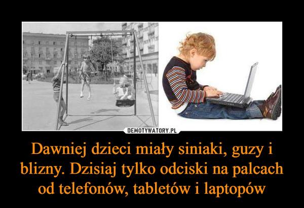 Dawniej dzieci miały siniaki, guzy i blizny. Dzisiaj tylko odciski na palcach od telefonów, tabletów i laptopów –