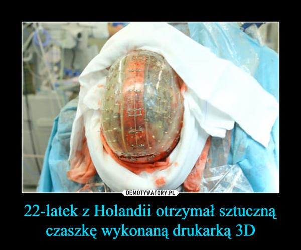 22-latek z Holandii otrzymał sztuczną czaszkę wykonaną drukarką 3D –