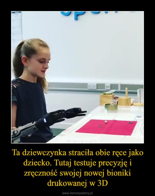 Ta dziewczynka straciła obie ręce jako dziecko. Tutaj testuje precyzję i zręczność swojej nowej bioniki drukowanej w 3D –