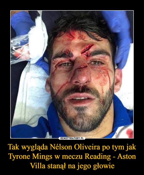 Tak wygląda Nélson Oliveira po tym jak Tyrone Mings w meczu Reading - Aston Villa stanął na jego głowie –