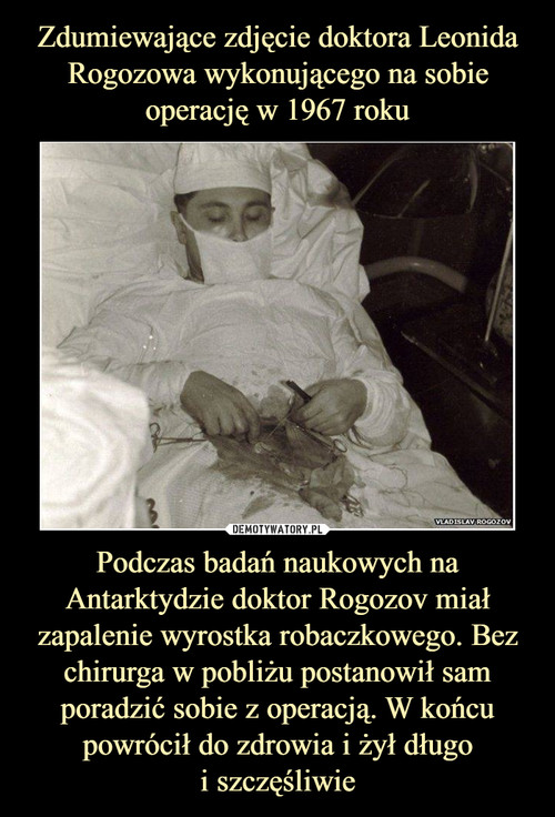 Zdumiewające zdjęcie doktora Leonida Rogozowa wykonującego na sobie operację w 1967 roku Podczas badań naukowych na Antarktydzie doktor Rogozov miał zapalenie wyrostka robaczkowego. Bez chirurga w pobliżu postanowił sam poradzić sobie z operacją. W końcu powrócił do zdrowia i żył długo i szczęśliwie