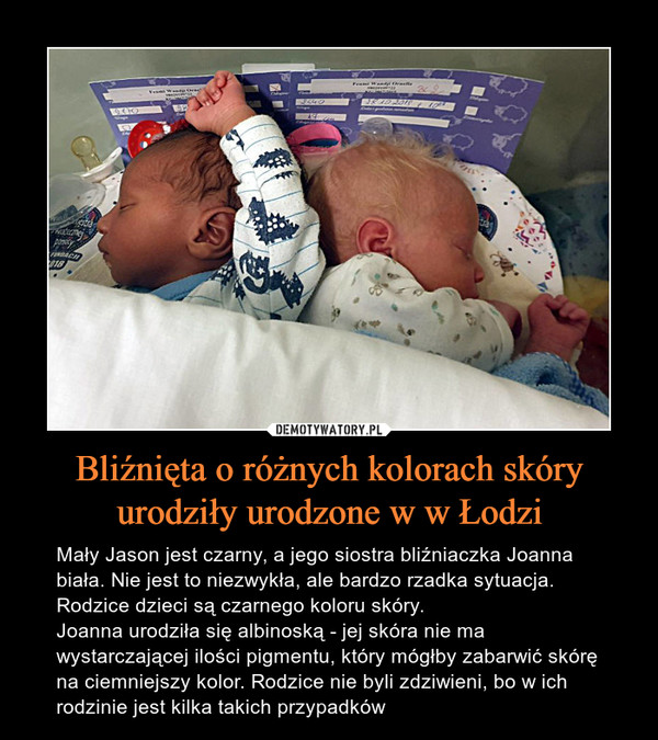 Bliźnięta o różnych kolorach skóry urodziły urodzone w w Łodzi – Mały Jason jest czarny, a jego siostra bliźniaczka Joanna biała. Nie jest to niezwykła, ale bardzo rzadka sytuacja. Rodzice dzieci są czarnego koloru skóry.Joanna urodziła się albinoską - jej skóra nie ma wystarczającej ilości pigmentu, który mógłby zabarwić skórę na ciemniejszy kolor. Rodzice nie byli zdziwieni, bo w ich rodzinie jest kilka takich przypadków