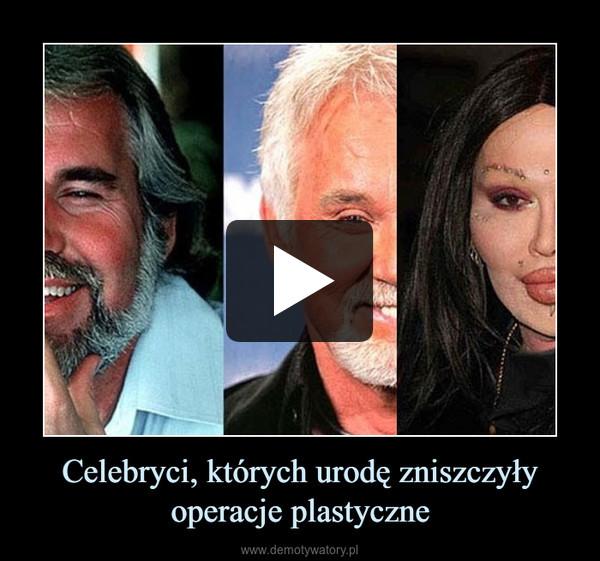 Celebryci, których urodę zniszczyły operacje plastyczne –