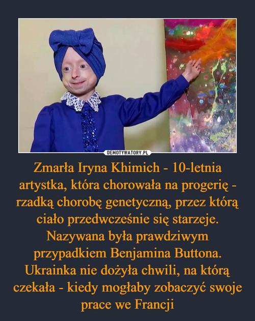 Zmarła Iryna Khimich - 10-letnia artystka, która chorowała na progerię - rzadką chorobę genetyczną, przez którą ciało przedwcześnie się starzeje. Nazywana była prawdziwym przypadkiem Benjamina Buttona. Ukrainka nie dożyła chwili, na którą czekała - kiedy mogłaby zobaczyć swoje prace we Francji